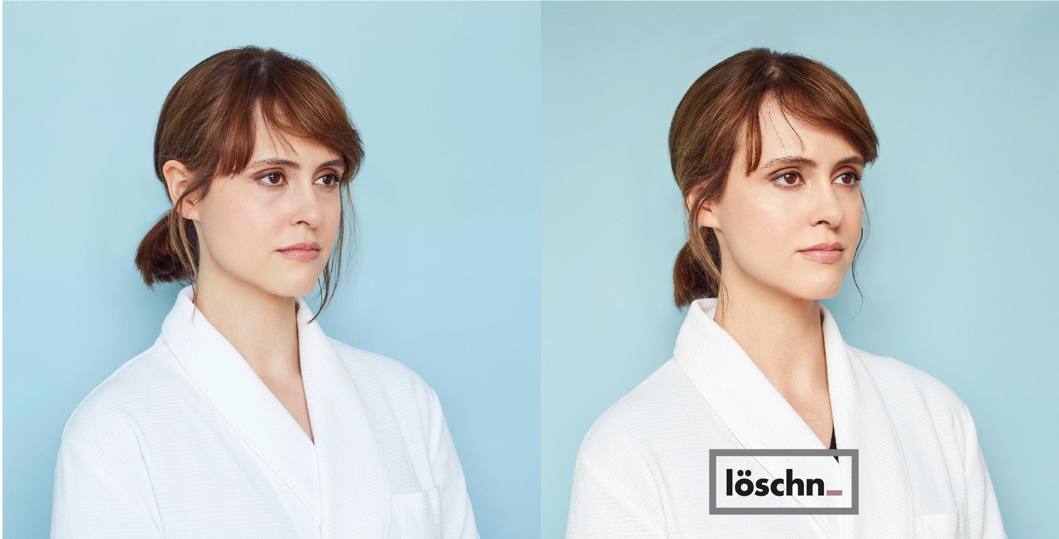 Kelsey-Before-0606.jpg
