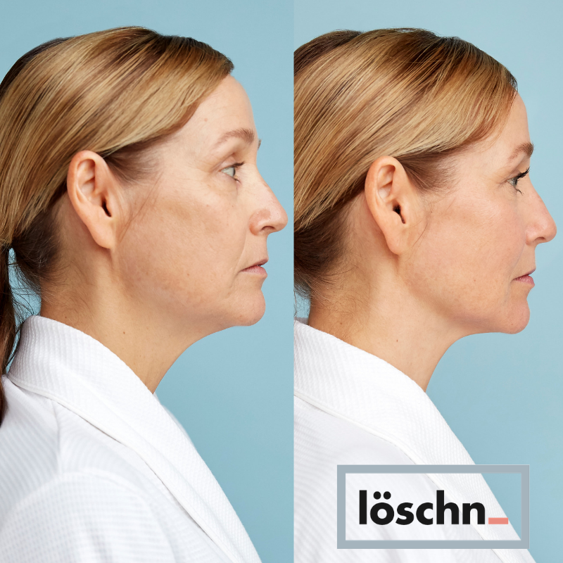 Löschn guides away excess fluid around your jawline and cheekbones and helps boost lymphatic drainage