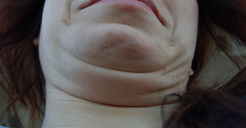 1. Double Chins -