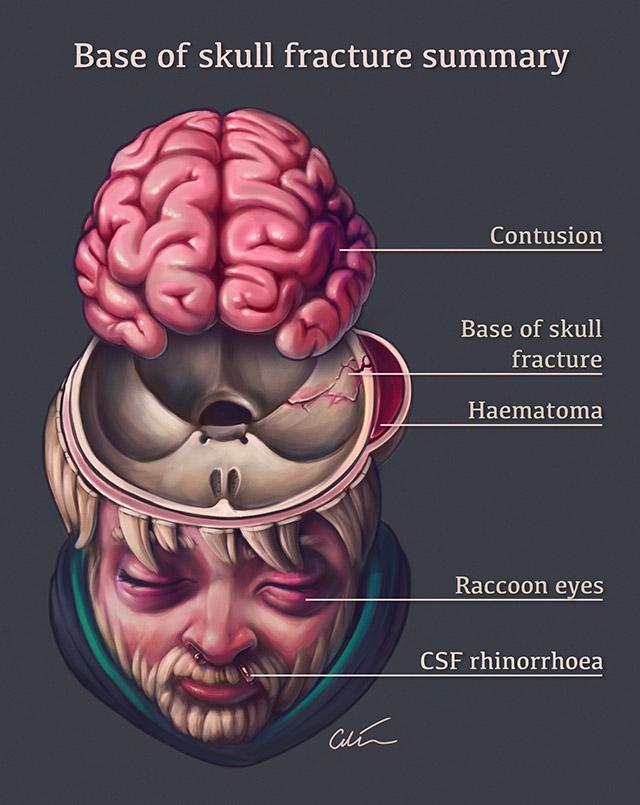 Fracture signs skull of basilar [Basilar skull