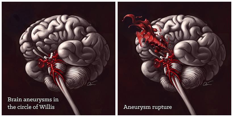 Brain aneurysm rupture, medical illustration by Dr Ciléin Kearns (artibiotics)