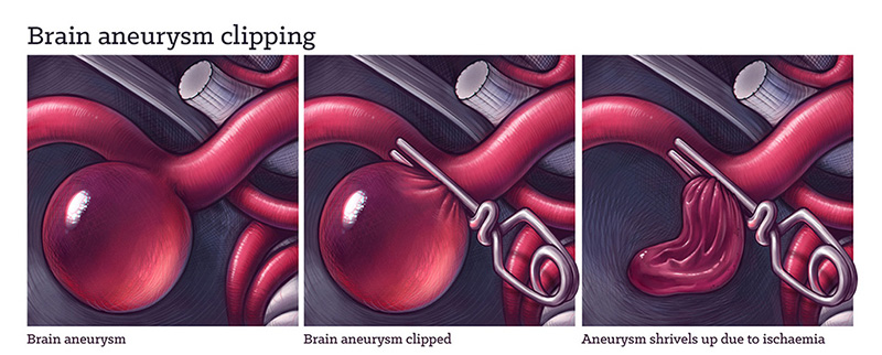 Brain aneurysm clipping, medical illustration by Dr Ciléin Kearns
