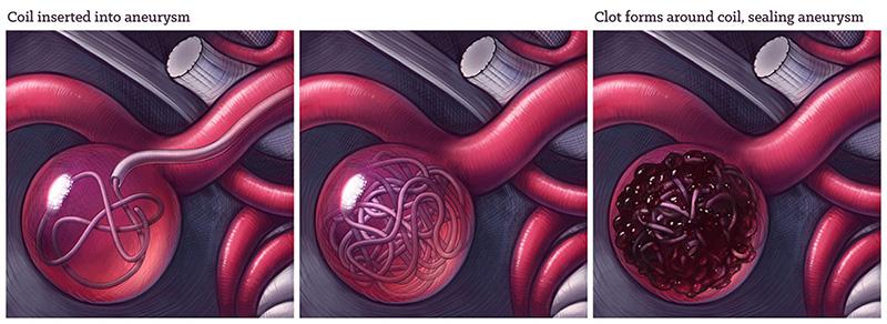 Brain aneurysm coiling, medical illustration by Dr Ciléin Kearns