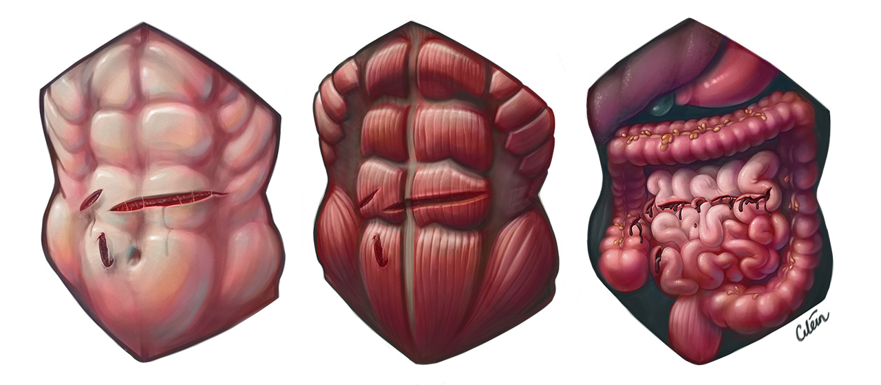 Arya Stark injuries by Dr Ciléin Kearns (artibiotics)