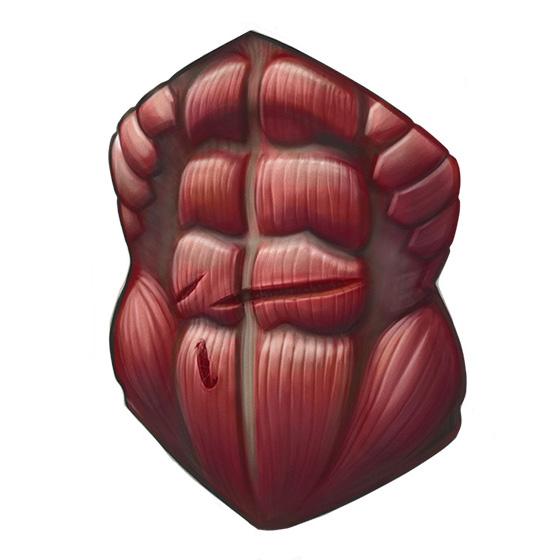 Arya Stark muscle wound by Dr Ciléin Kearns (artibiotics)