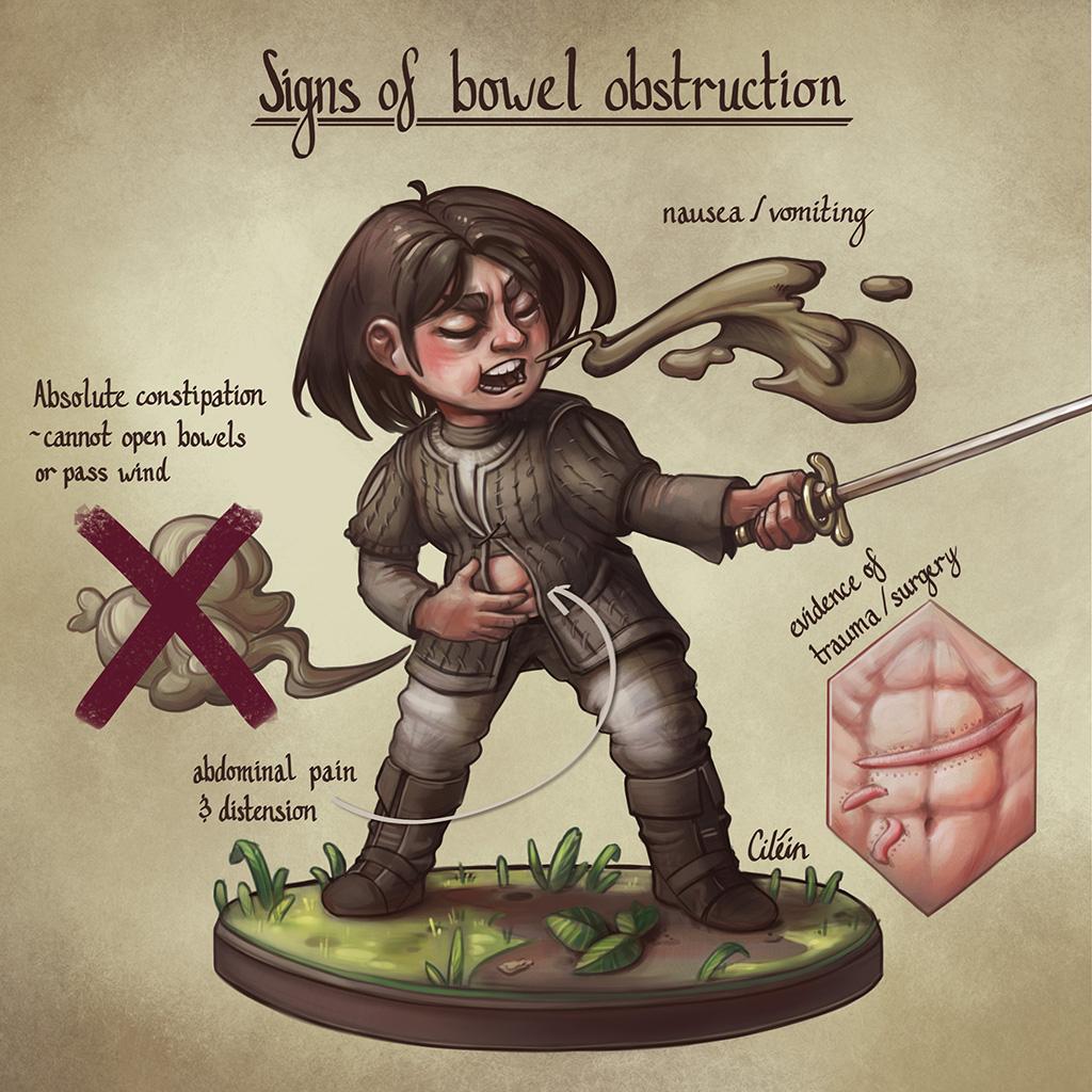 Bowel obstruction signs with Arya Stark, by Dr Ciléin Kearns (artibiotics)