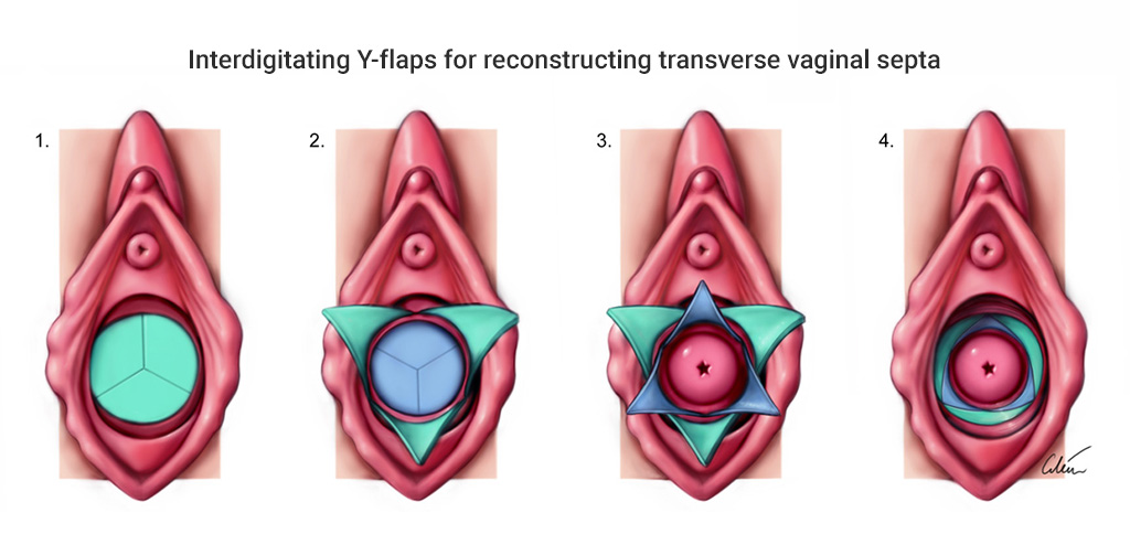Interdigitating Y flap reconstruction of transverse vaginal septa. Surgical illustration by Dr Ciléin Kearns (artibiotics)