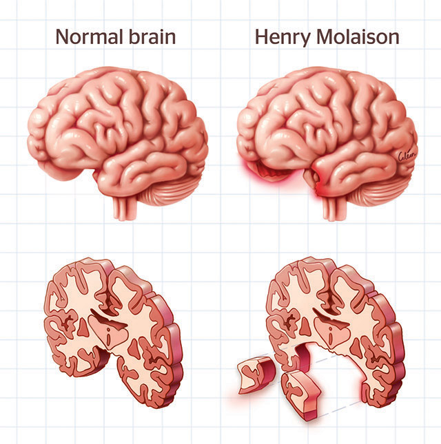 Henry Molaison brain by Dr Ciléin Kearns (artibiotics)