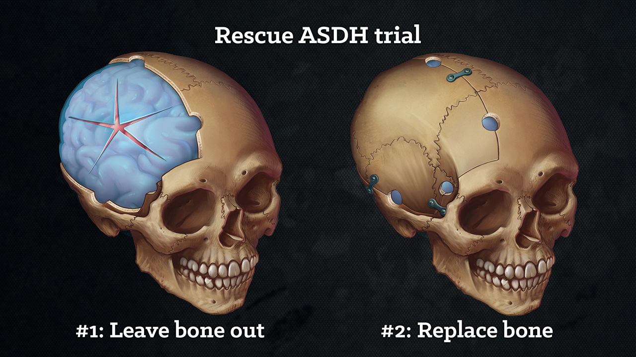 Rescue ASDH trial wings : here I have illustrated the two surgical management options that patients are assigned to in a large  Neurosurgery clinical trial . Photography or video would have a limited view, making orientation difficult. Showing bloody surgery that is difficult to interpret out of context, to viewers without a background in surgical training, may be distressing and  detrimental to objectively communicating pathology and treatment options.    My clean skulls orientate the viewer with familiar anatomy. The stylised dura (blue) are made more distinct in color to clearly stand out. There are no surgical tools, drapes, or hands to distract from the important details I wish to communicate.