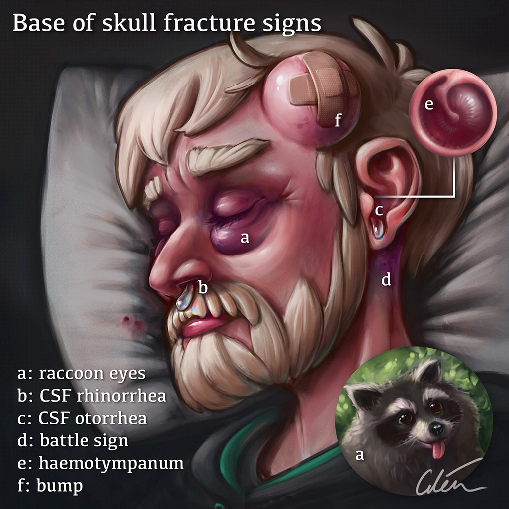 Base of skull fracture signs : a summary of important clinical signs that point to a base of skull fracture, from an  article I wrote and illustrated  for my blog 'artibiotics'.