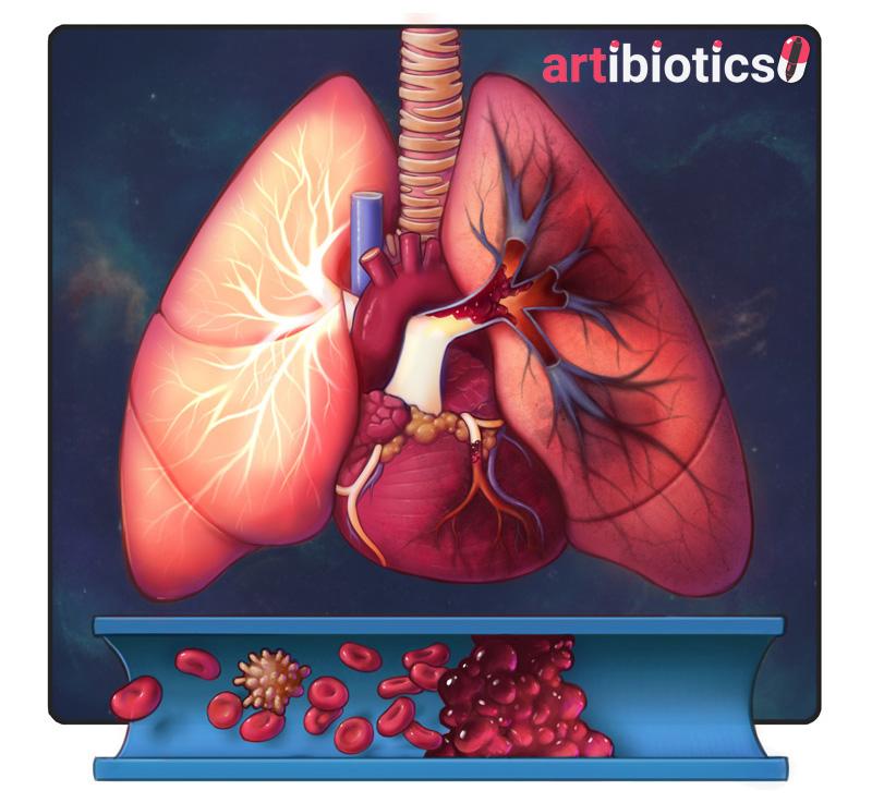 thrombus by dr cilein kearns artibiotics.jpg