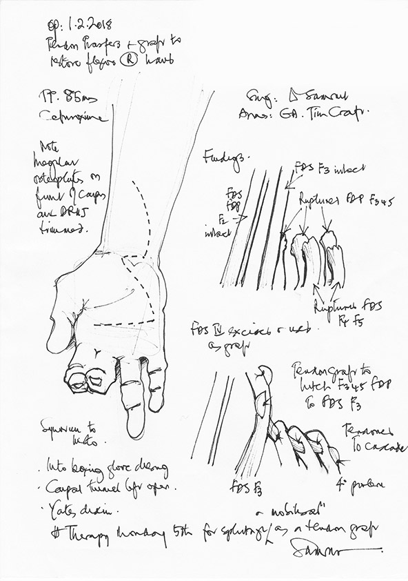 Figure 4.    'Tendon transfer and graft to restore flexors of the right hand' illustrated operation note created by Mr Donald Sammut, Consultant Hand Surgeon, UK, (   Working Hands   ).