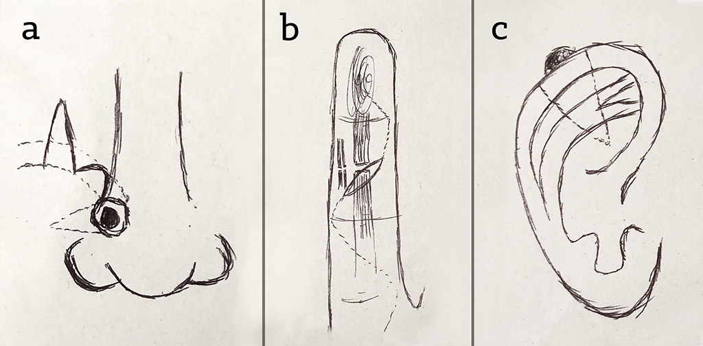 Figure 6.    Examples of post-operative drawings from a Plastic Surgeon (who wished to remain anonymous), including (a) nasal skin lesion excision closed with bilobed flap, (b) finger laceration extended with Brunner's incisions for exploration, and (c) auricular wedge excision of a skin lesion. These types of drawings are often used in post-operative notes to help summarise pathology findings and surgical intervention. They can be useful for post-operative care of the patient, including ward rounds, wound management, physiotherapy, follow-up clinic, and future surgery.
