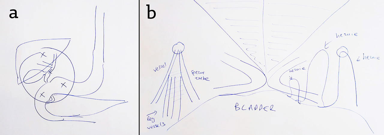 Figure 7.    Drawings made to explain pathology and surgical intervention, including (a) cholecystectomy, and (b) hernia repair, by Mr Dimitris Damaskos, Consultant General Surgeon. Sketches like this are made in clinic and while on ward rounds. They can help patients understand their diagnosis and potential surgery, which is necessary to give informed consent. Drawings like this evolve dynamically in real time with the surgeons' explanation, and are tailored to a patients questions and level of understanding.
