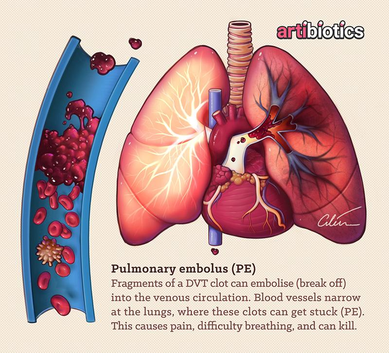 Pulmonary Embolism medical illustration by Dr Ciléin Kearns (Artibiotics)