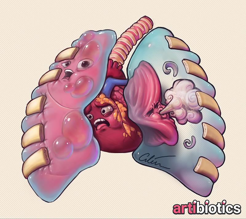 Tension pneumothorax medical illustration by Dr Ciléin Kearns (Artibiotics)