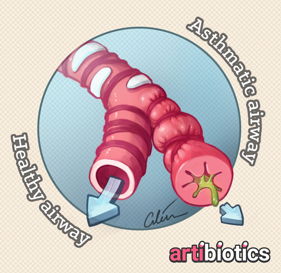 Asthmatic vs healthy airways closeup medical illustration by Dr Ciléin Kearns (Artibiotics).