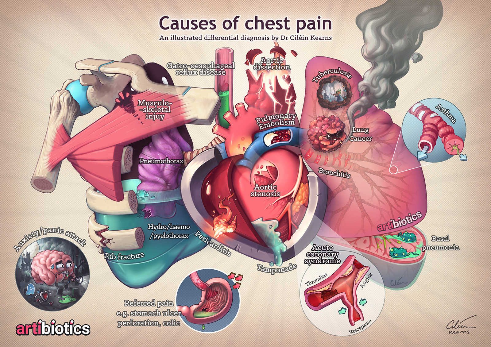 Causes of chest pain by Dr Cilein Kearns (Artibiotics). You can get support my ongoing work by getting a limited edition  A3 poster , or high-res PDF so you can print your own A4 poster  here .
