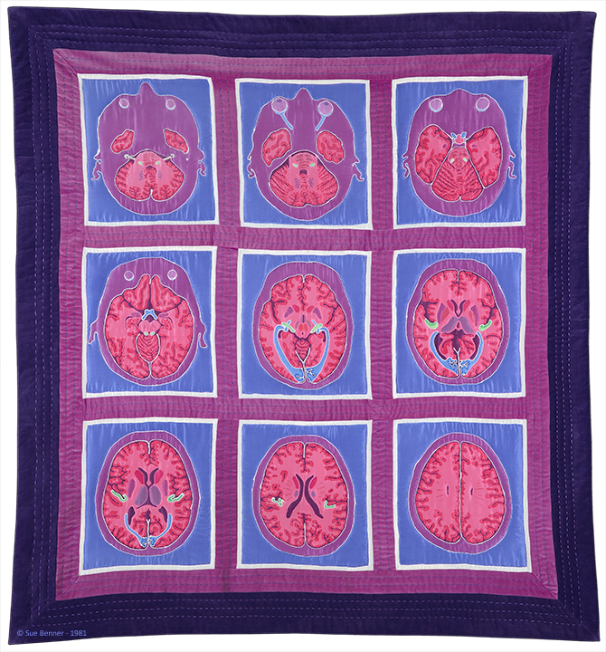 Brain Quilt,  66 H X 60 W in, 1981 and 2015, dye on silk (batik), cotton, machine and hand pieced, hand quilted by Julie Steger, Caroline Walker and Sue Benner, Department of Neurological Surgery, UT Southwestern Medical Center, Dallas TX