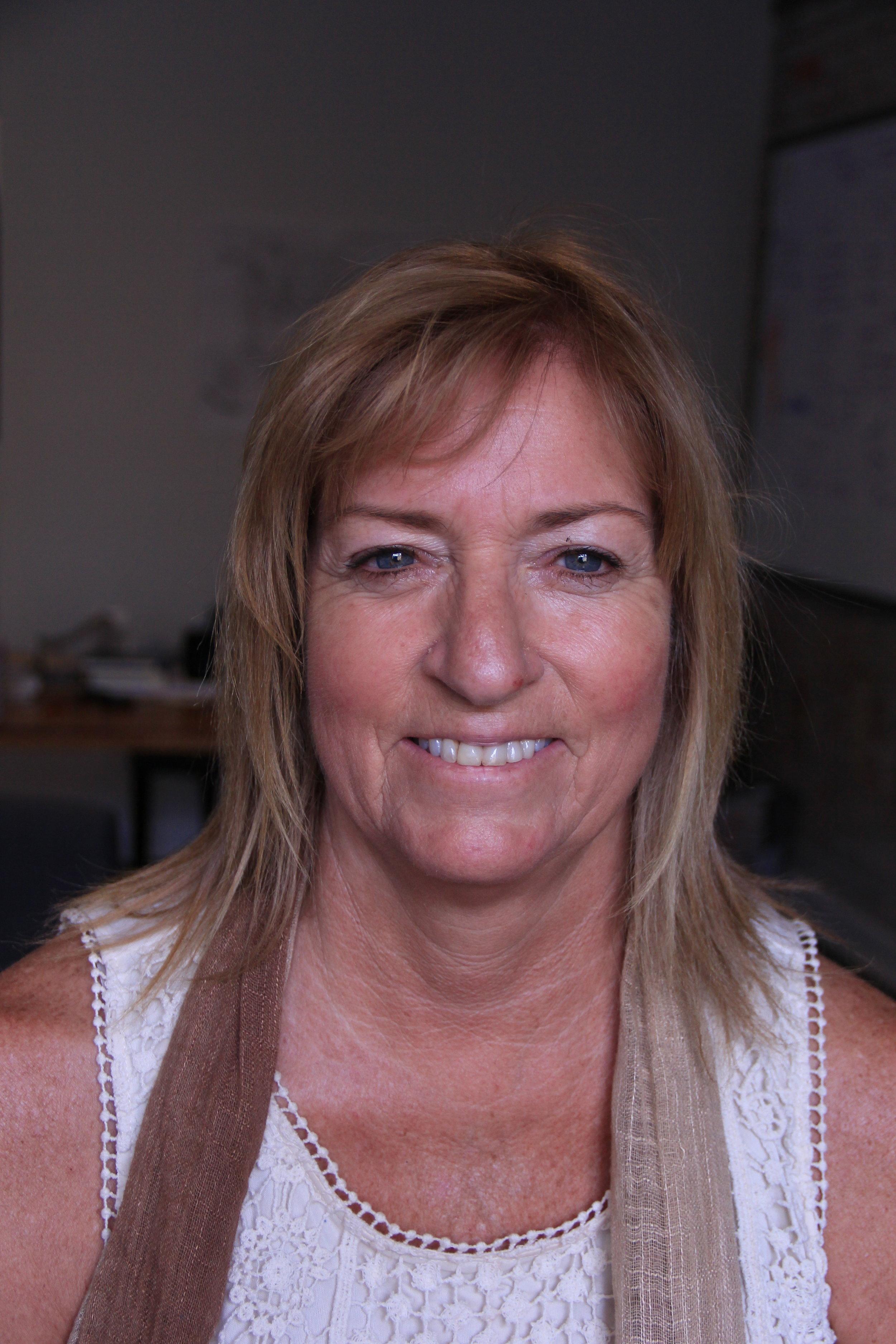 Teresa Slack