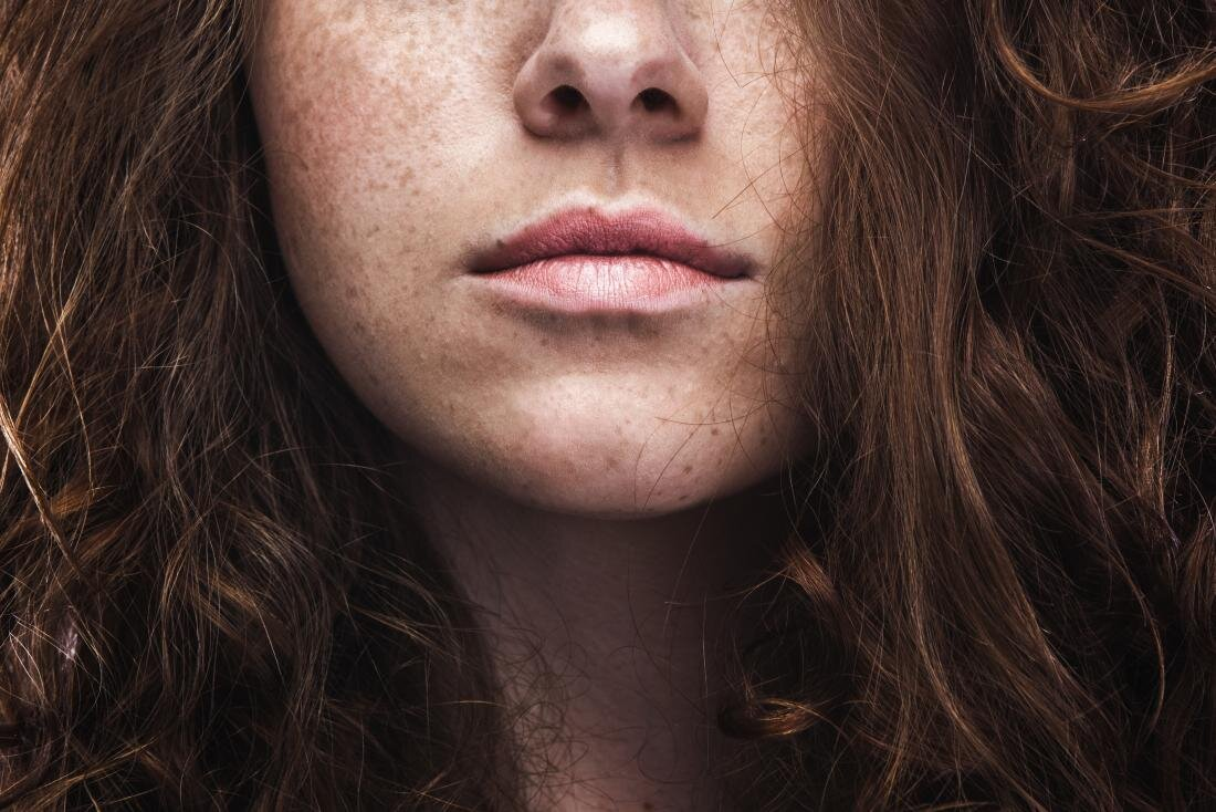 freckles-on-a-woman-s-face.jpg