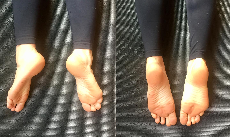 Improper vs. proper feet alignment