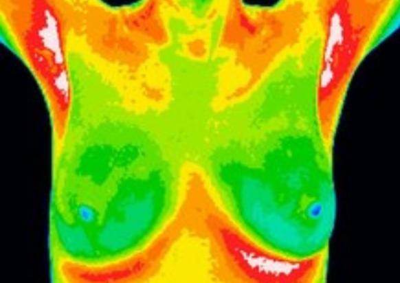 Thermografisk scanning af bryster