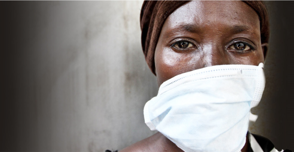 Tuberculosis Outcasting and Stigmatization