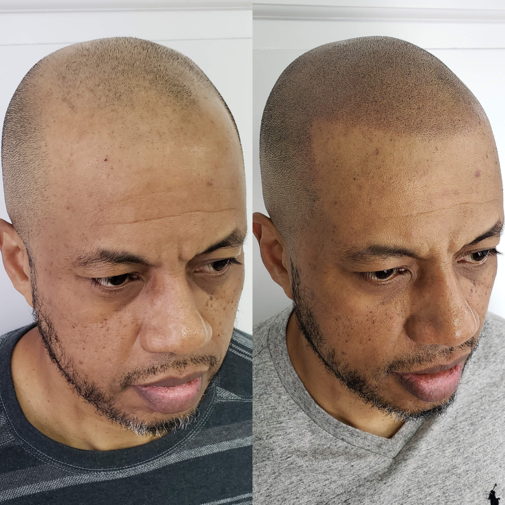 Scalp Co - SMP Before and After Darker Skin color.jpg