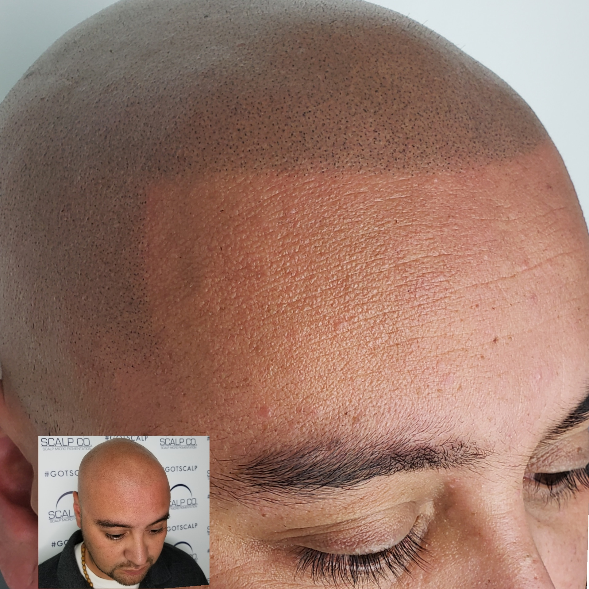balding in the front smp fixed my bald spot.jpg