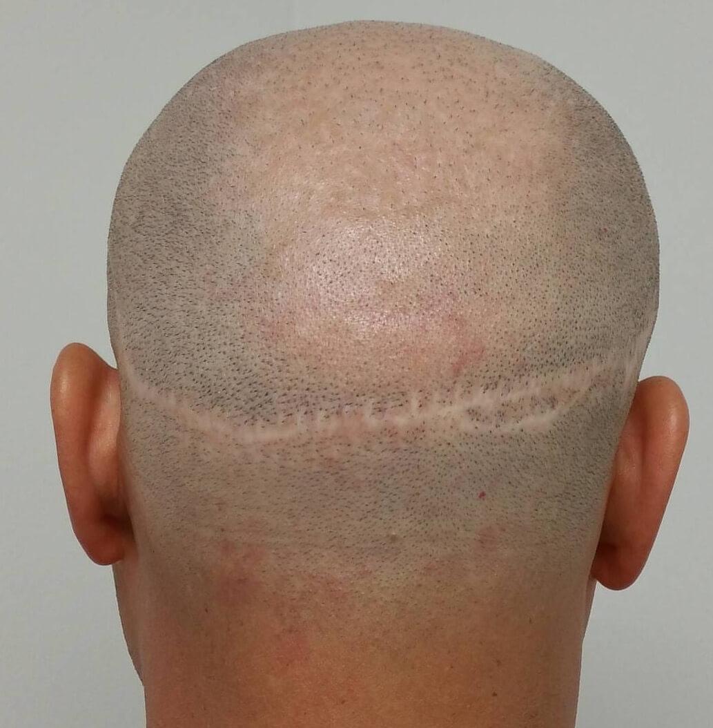 Hair-transplant-Scar-Fix.JPG