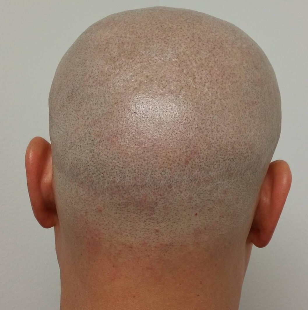 Hair Transplant Scare After photos.JPG