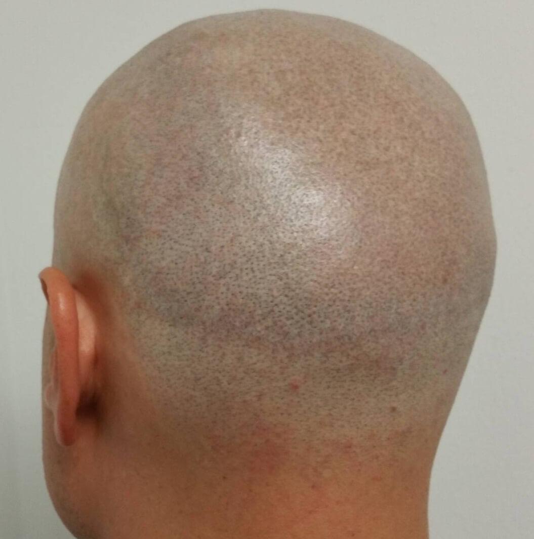 Scalp Scar repair healed.JPG