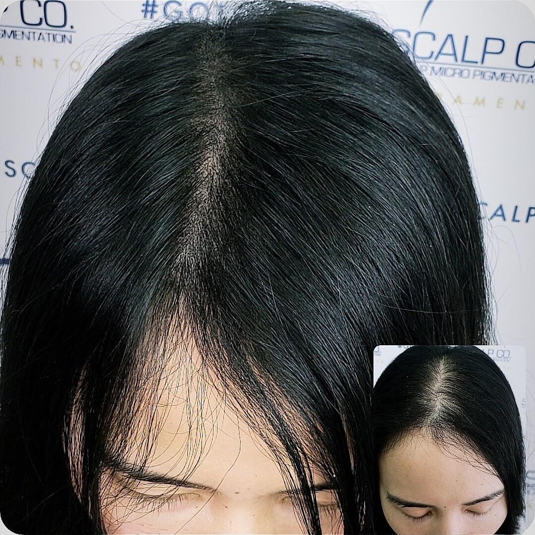 SMP scalp co female up close.JPG