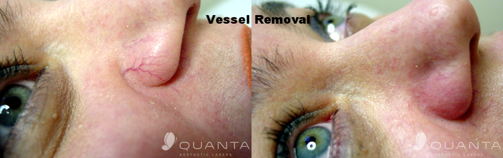 Copy of Vascular-Nasal-Wings-1064_Before_After.png