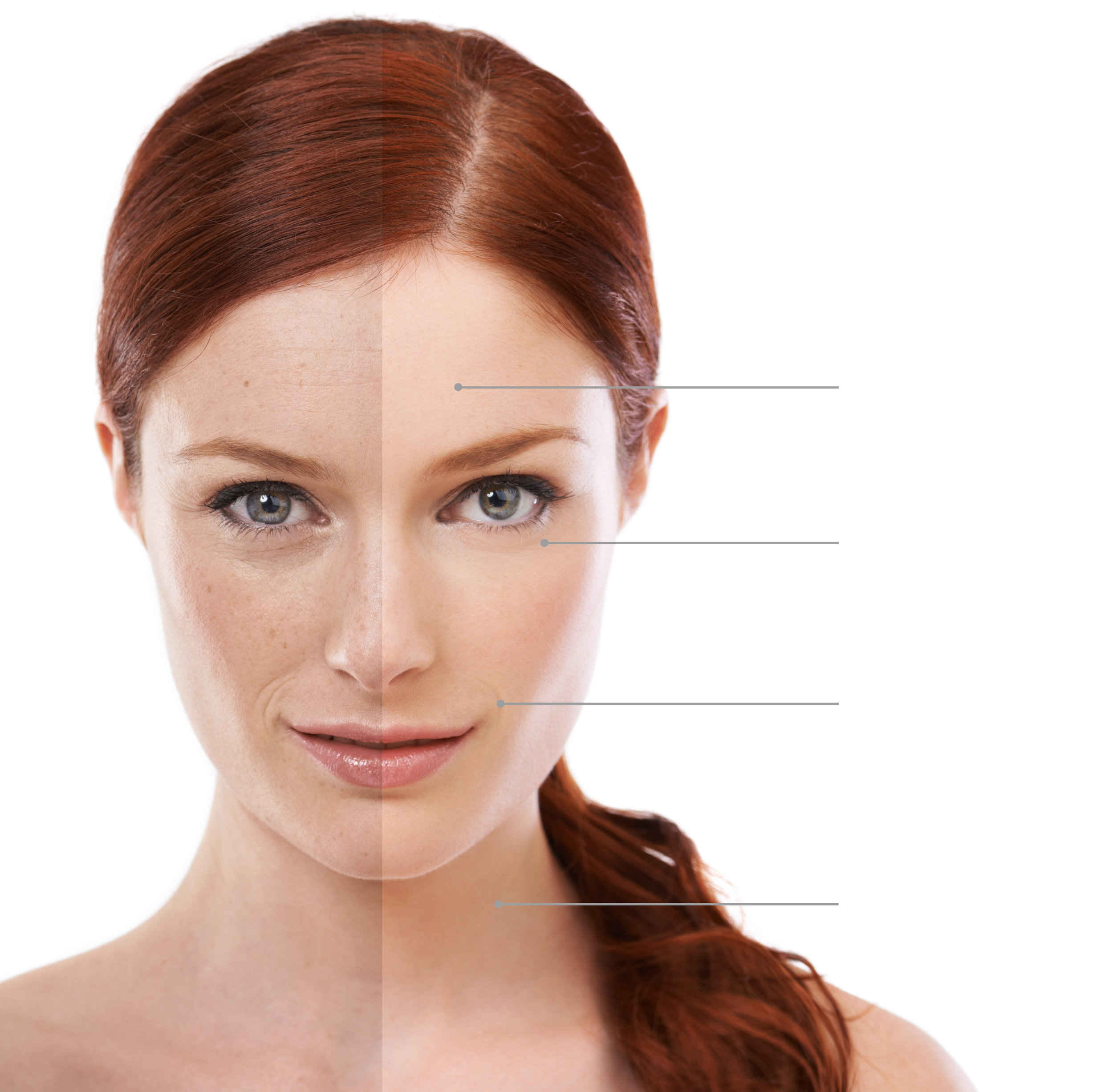 Pigmentation Correction - New York Laser Loft uses laser light to target and remove the pigment in sun spots, age spots, and freckles leaving the surrounding tissue unharmed. Common areas include the face, chest, arms, and hands.