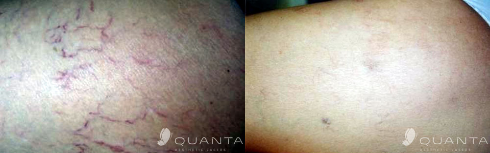 Copy of Vascular-Leg-Veins-1064_Before_After.png