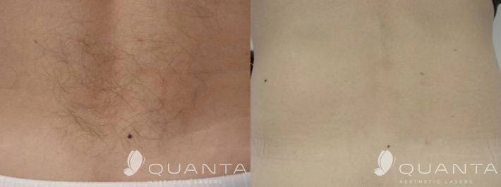 Copy of Copy-of-Hair-Removal-Back-IPL_Before_After.png