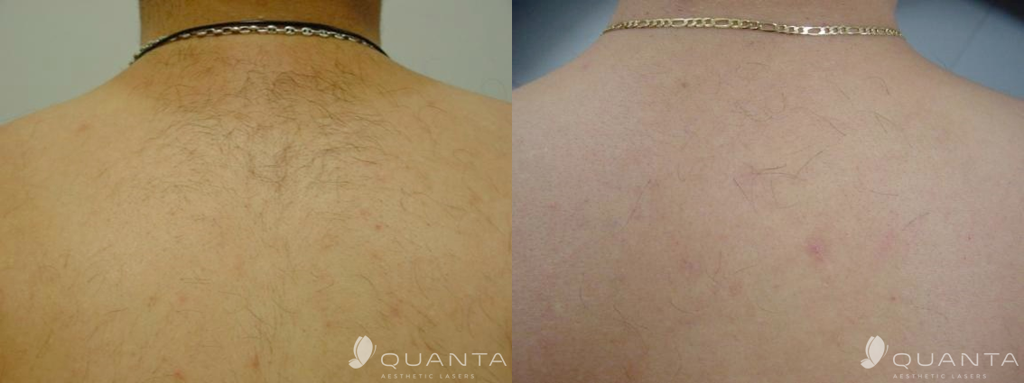 Copy of Hair-Removal-Back-755-Before_After.png