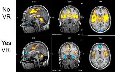 Sam Sharar's study using MRI to show brain activity with and without VR