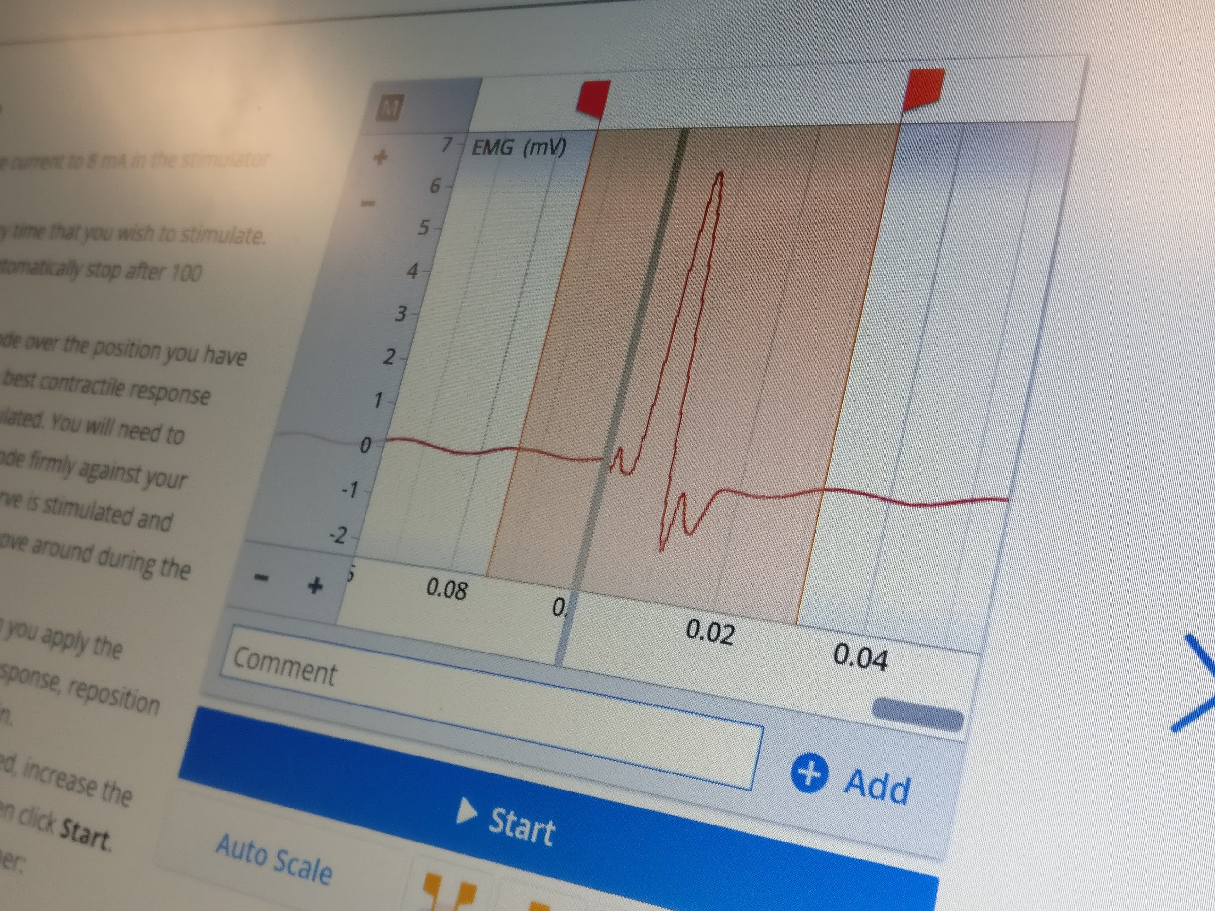 We were able to measure the electrical activity in the muscle when movement was elicited