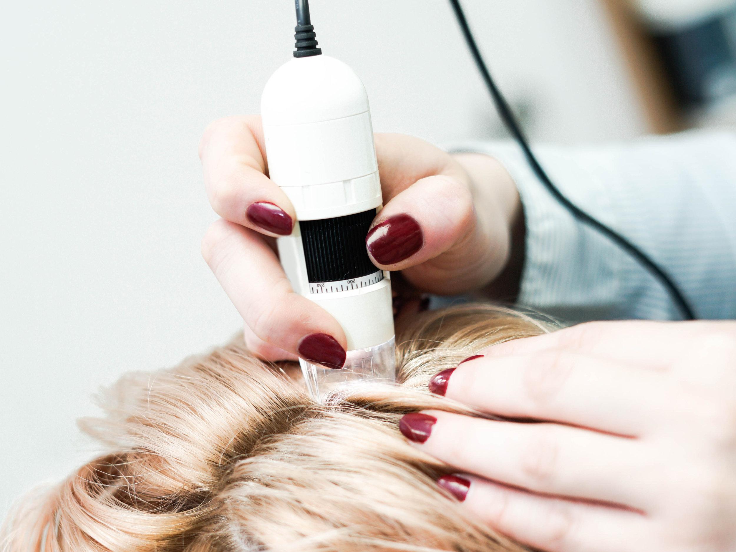 Dermatoscopia do couro cabeludo
