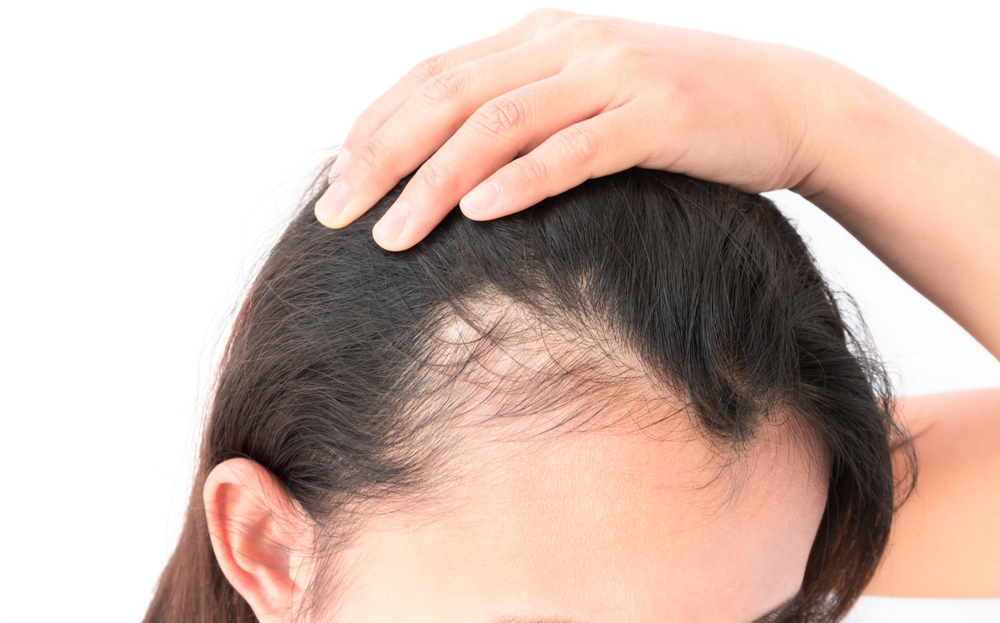Tratamentos para queda de cabelo.jpg