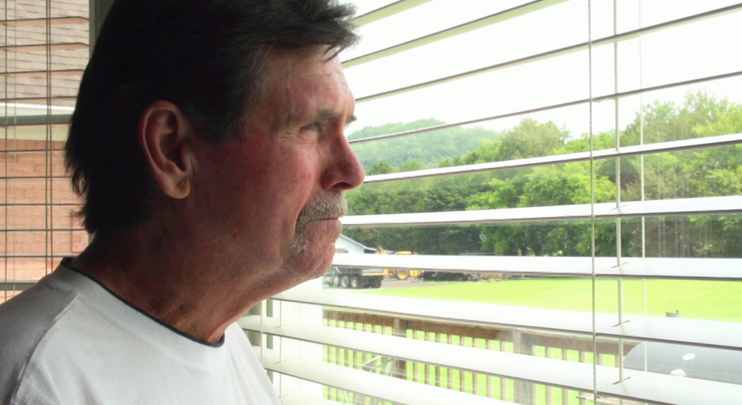 Tony Underhill's Scleroderma Journey - Watch the story of Tony Underhill's comeback after Scleroderma ravaged his body.