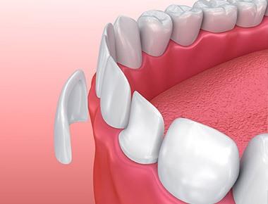 dental-veneers-north-palm-beach.jpg