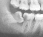 Large cavity noted in the wisdom tooth and the 2nd molar. This adult patient will have to have both teeth removed because the decay is not treatable.