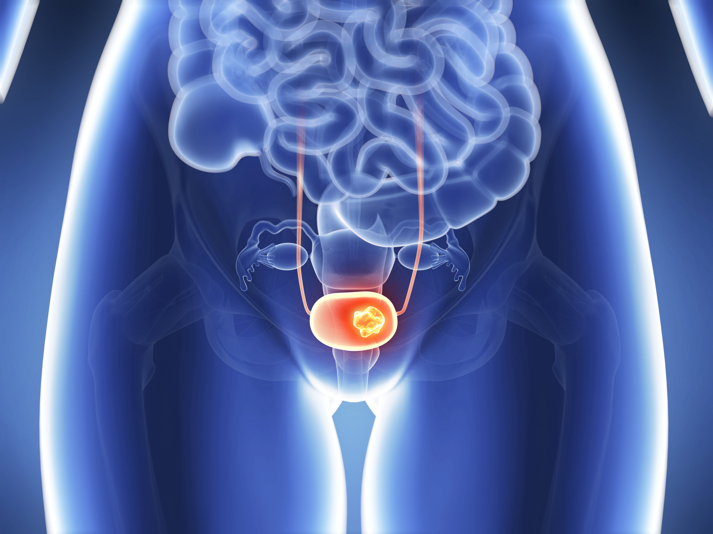 bladder-cancer