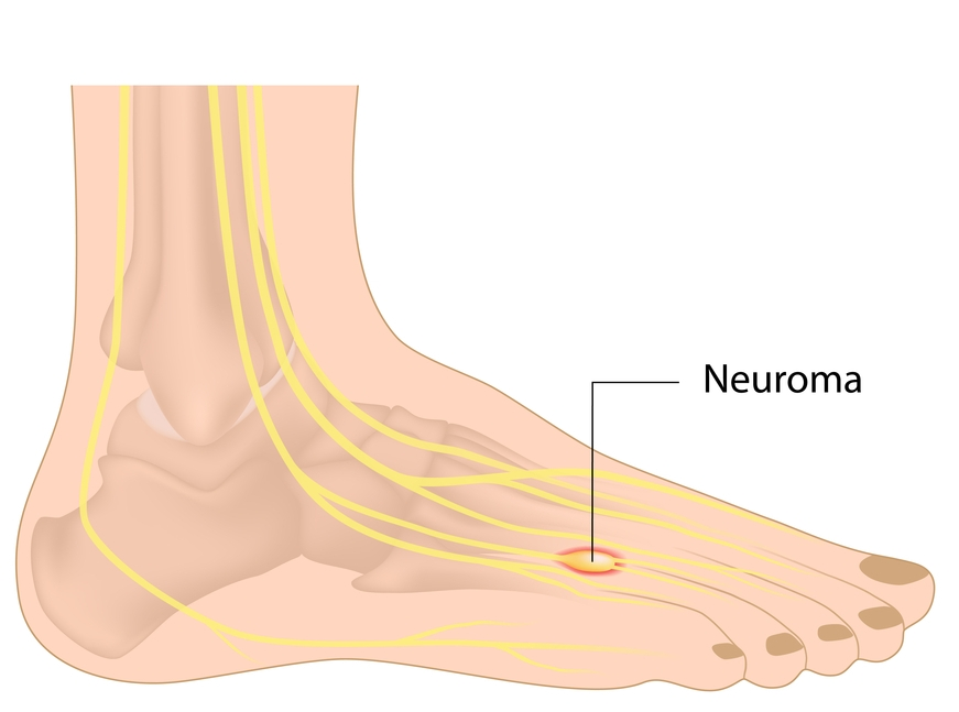 treatment for morton's neuroma in hartford and rocky hill, ct