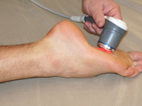 foot pain treatment with laser therapy