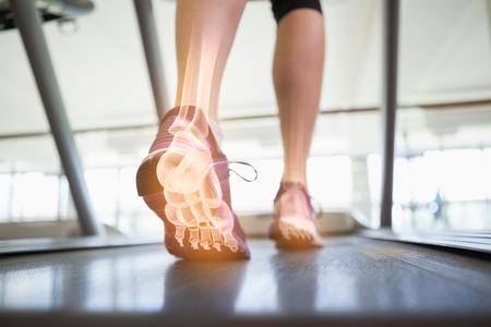 44790491_S_treadmill_bones_feet_sneakers_.jpg